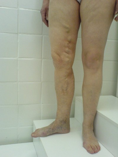 Лечение варикоза вен на ногах в Самаре отзывы
