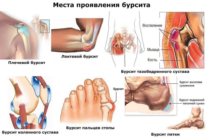 Бурсит коленного сустава самара остеоартроз лицевых суставов