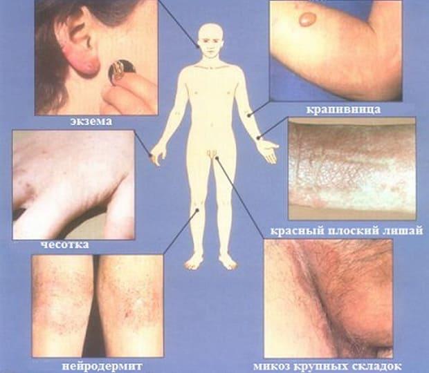 Врач дерматовенеролог в Самаре